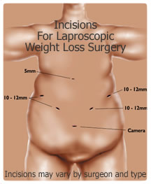 Weight_loss_surgery